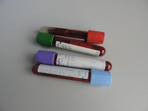 prueba de sangre de embarazo en ayunas